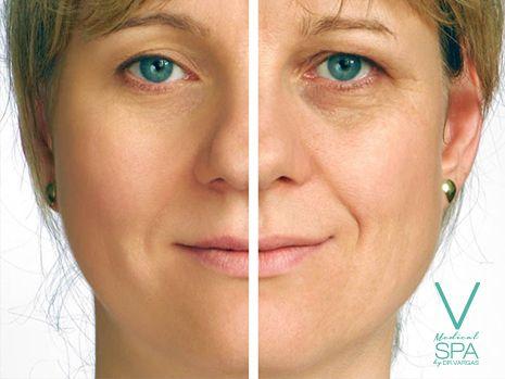 Las emociones que vives se plasman en tu rostro. ¡Somos especialistas en eliminar cada tipo de arruga con diferentes opciones de tratamientos!  Visita #VMedicalSpa