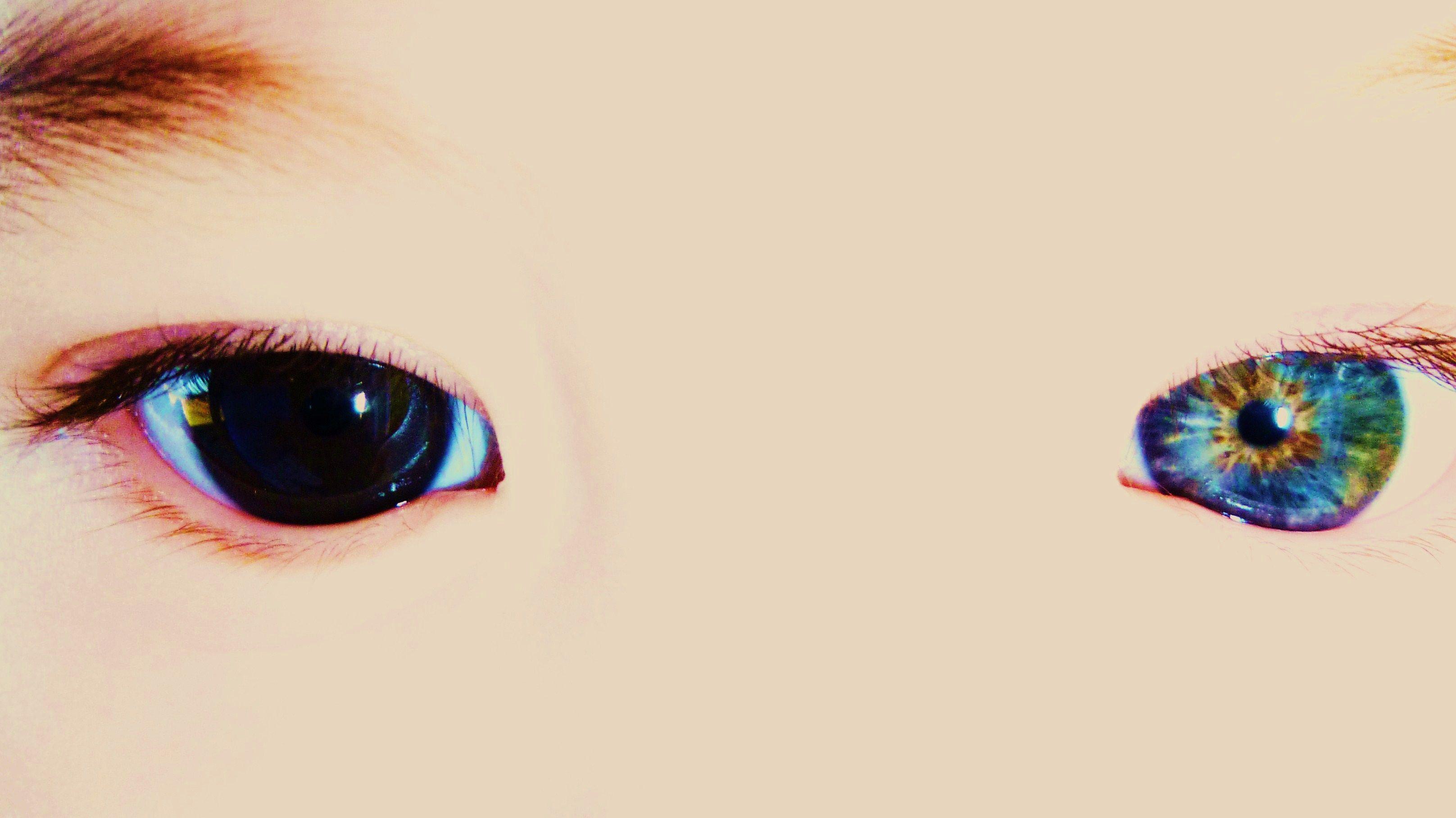 Case's eyes. I just change the brightness, tint, and saturation or the photo. Heterochromia iridum