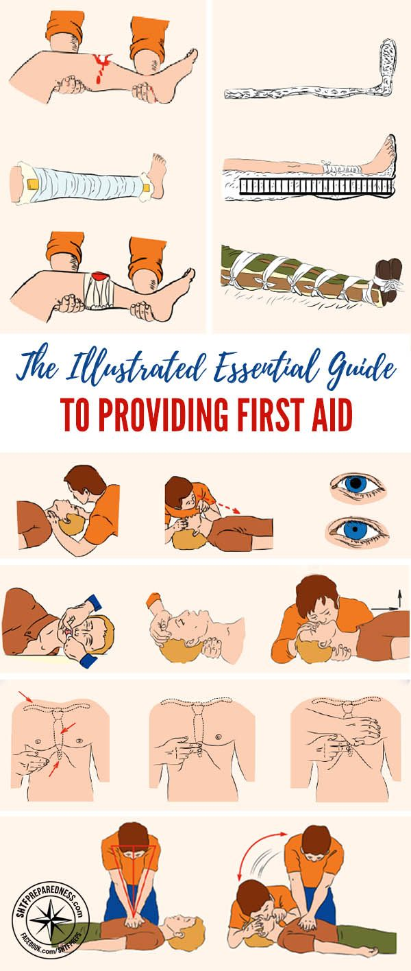 The Illustrated Essential Guide to Providing First Aid