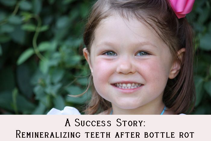 A Success Story: Remineralizing Teeth After Bottle Rot with a nutrient dense diet. Amazing!