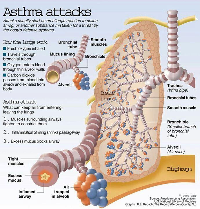 80 Best Nursing Asthma Images Asthma Asthma Treatment Asthma