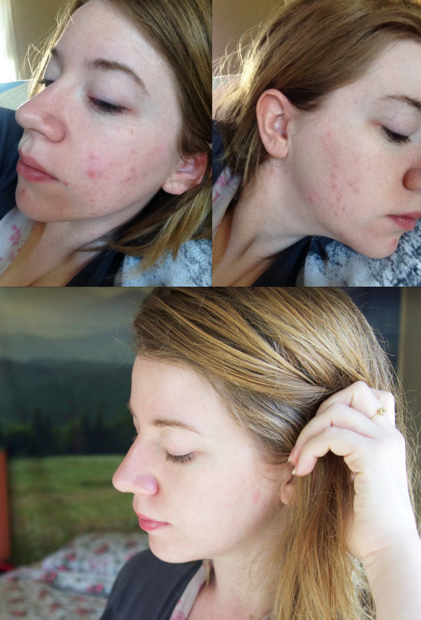 Review on spironolactone acne clearing pill  | Skincare Tips