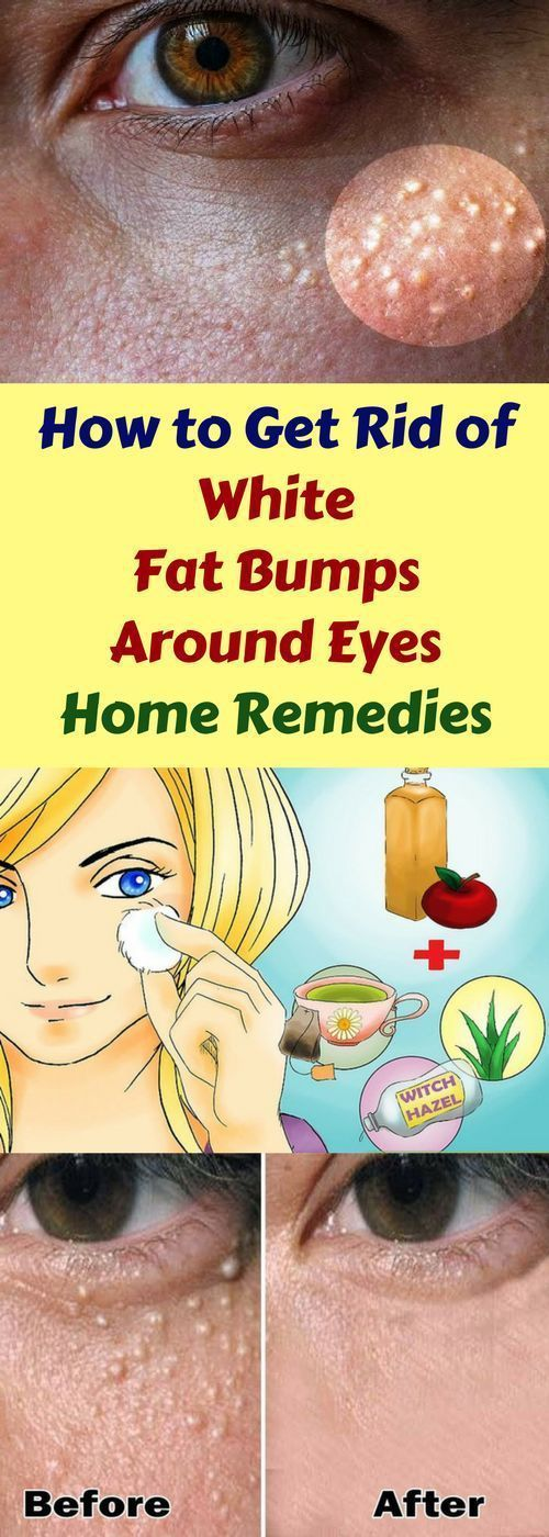 How To Get Rid Of White Fat Bumps Around Eyes & Natural Remedy!!!  #wieghtloss  #fitness