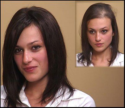 Awe Inspiring Hair Transplants Are Not Effective For Female Pattern Baldness Hairstyle Inspiration Daily Dogsangcom