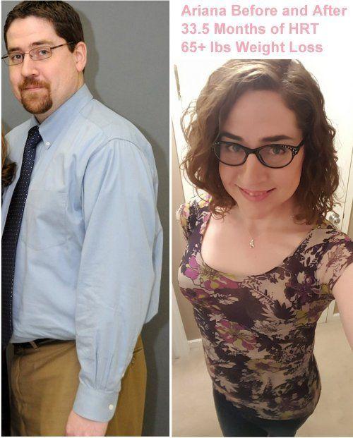 Post op transgender tumblr