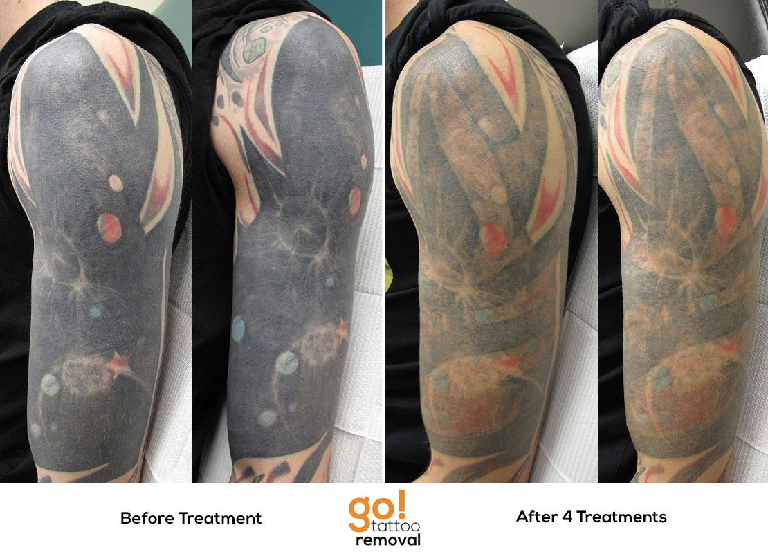 After 4 laser tattoo removal treatments this sleeve is