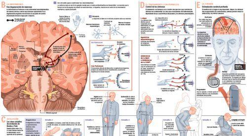Infográfico sobre la enfermedad de Parkinson | ANATOMÍA | Pinterest ...