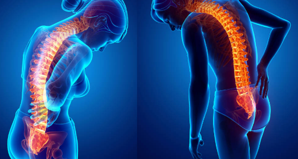 6 Stretches For Complete Lower Back Pain Relief
