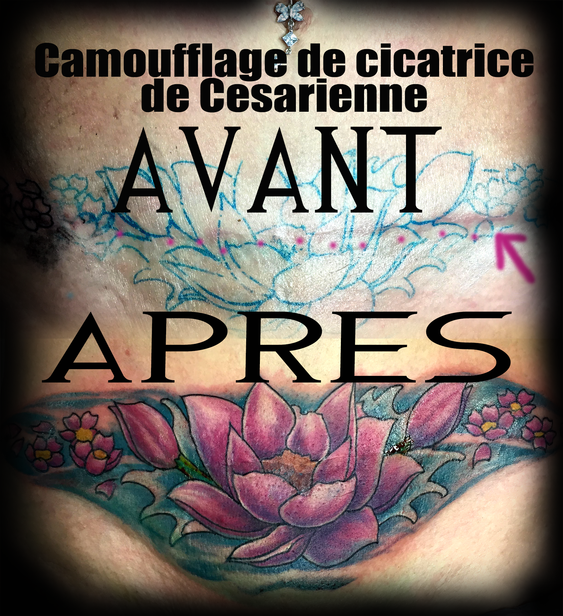 Tatouage D Un Cover Up De Cicatrice De Cesarienne Cacher Cicatrice