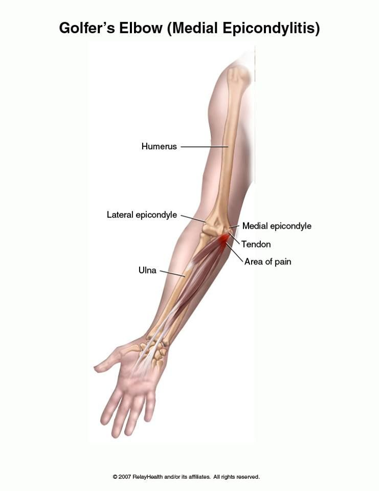 Golfer\'s Elbow What is golfer\'s elbow? Golfer\'s elbow is a painful ...