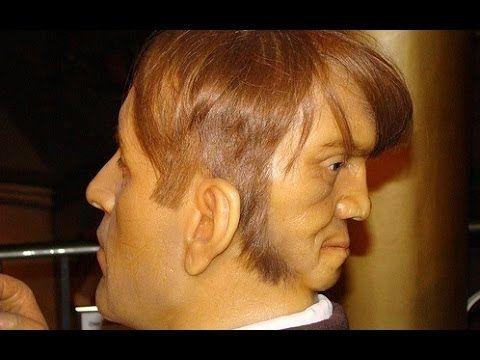 شاهد تفاصيل الرجل الذي عاش بوجهين وماذا كان يفعل الوجه الثانى Human Oddities Two Faces Weird