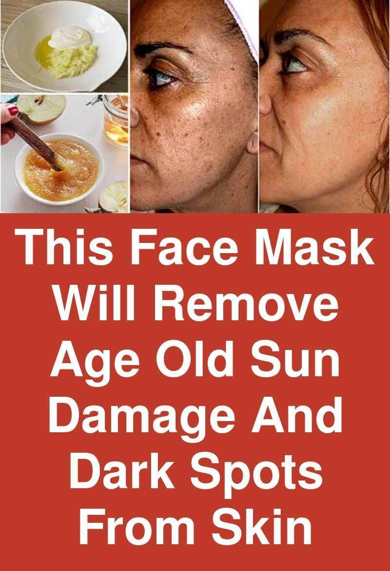 bab803930a42d89a2ac959b295055709 - How To Get Rid Of Sun Damage Spots On Face