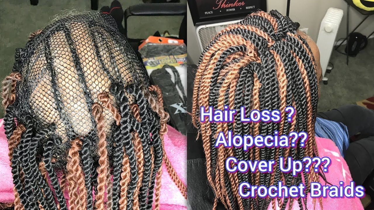 Crochet Braids On A Net With Some Alopecia With Images