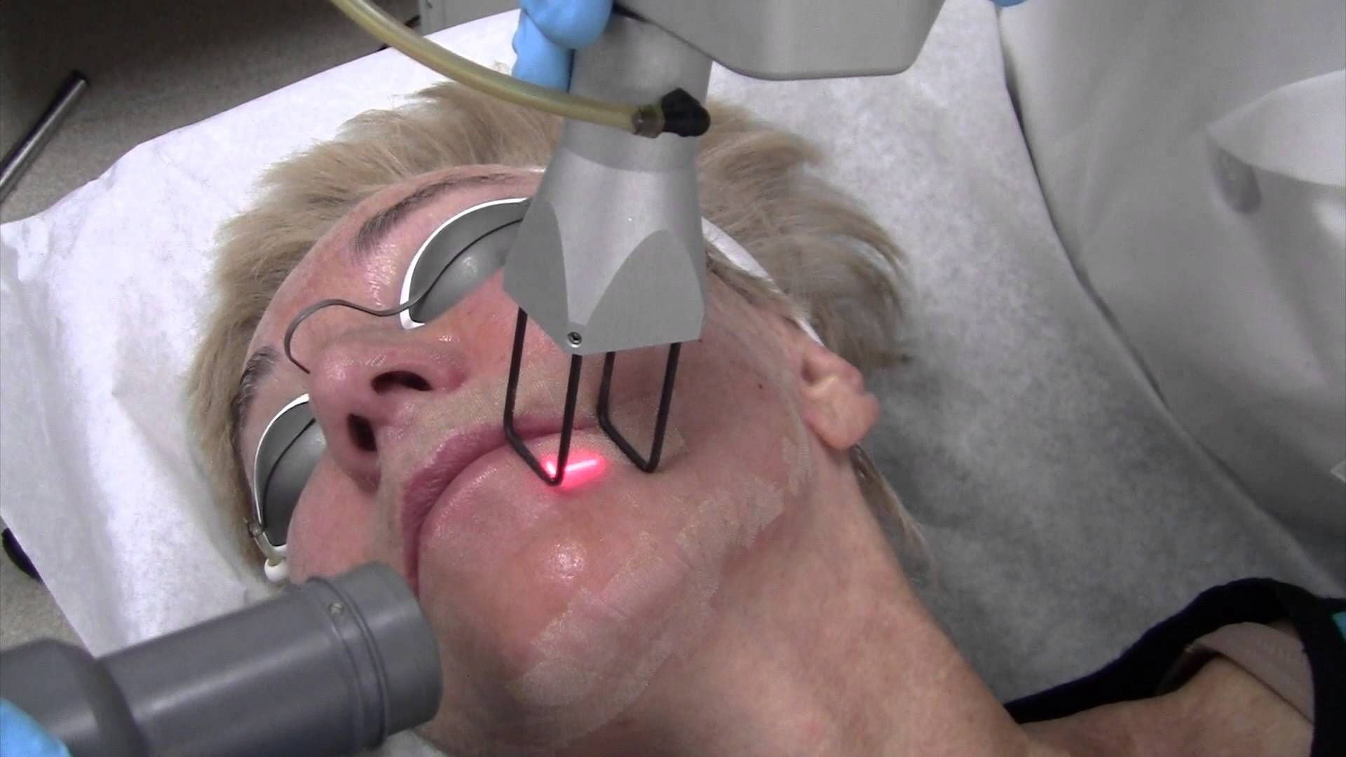 Laser Resurfacing: Learn About the Treatment and Cost