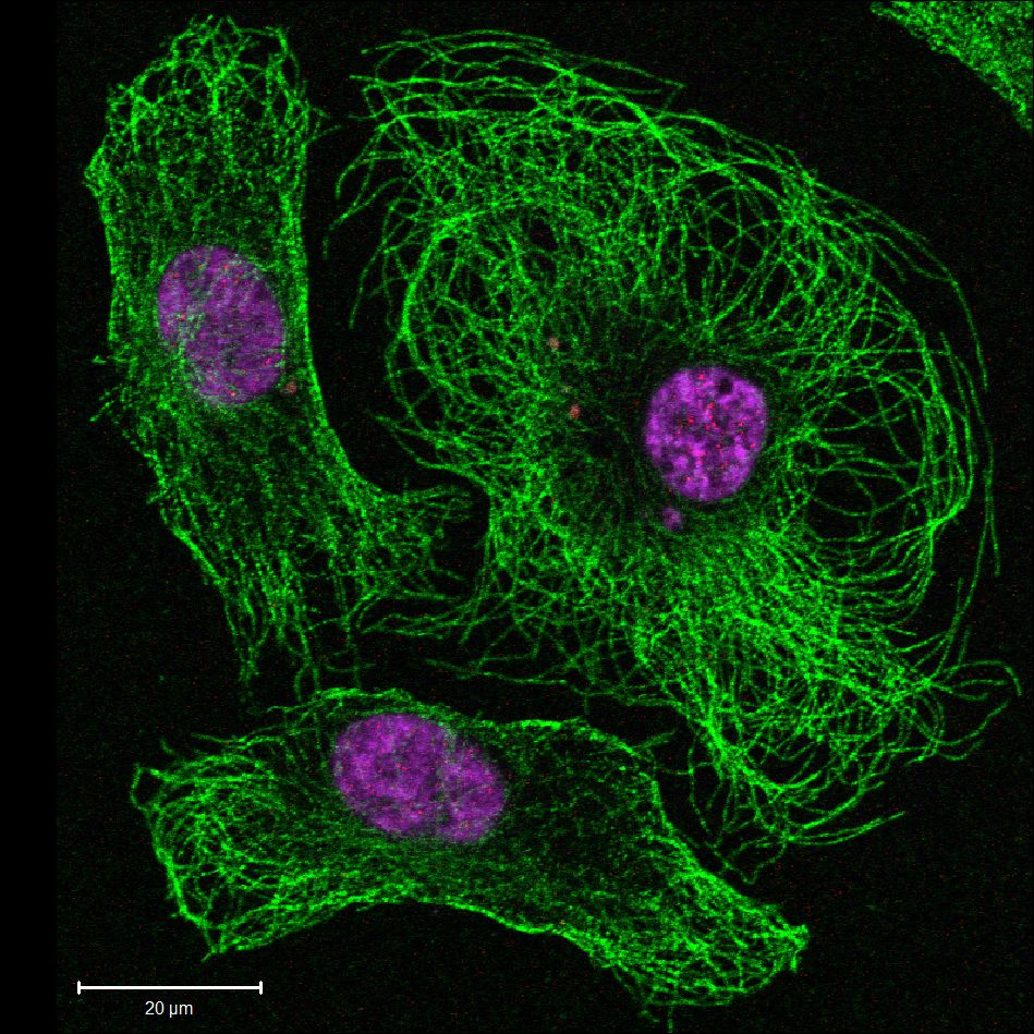 Imagen De Inmunofluorescencia De Células Endoteliales Con