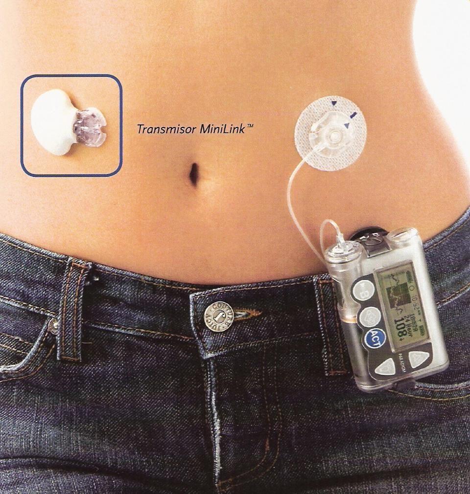 instituto de investigación de diabetes biohub páncreas artificial