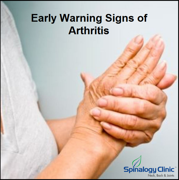 Early warning signs of Arthritis - #Arthritis is a common condition that causes pain…