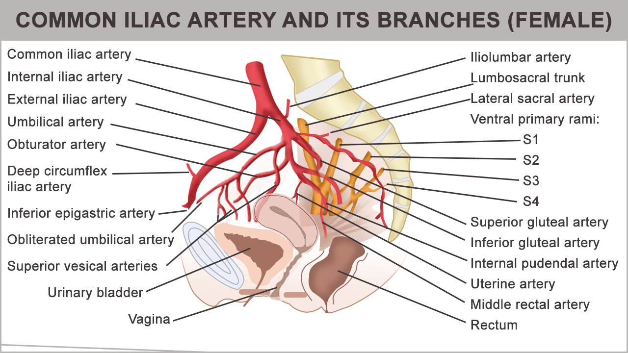 Anatomy And Function Of The Common Iliac Artery With Labeled Diagrams Arteries Abdominal Aorta Interventional Radiology