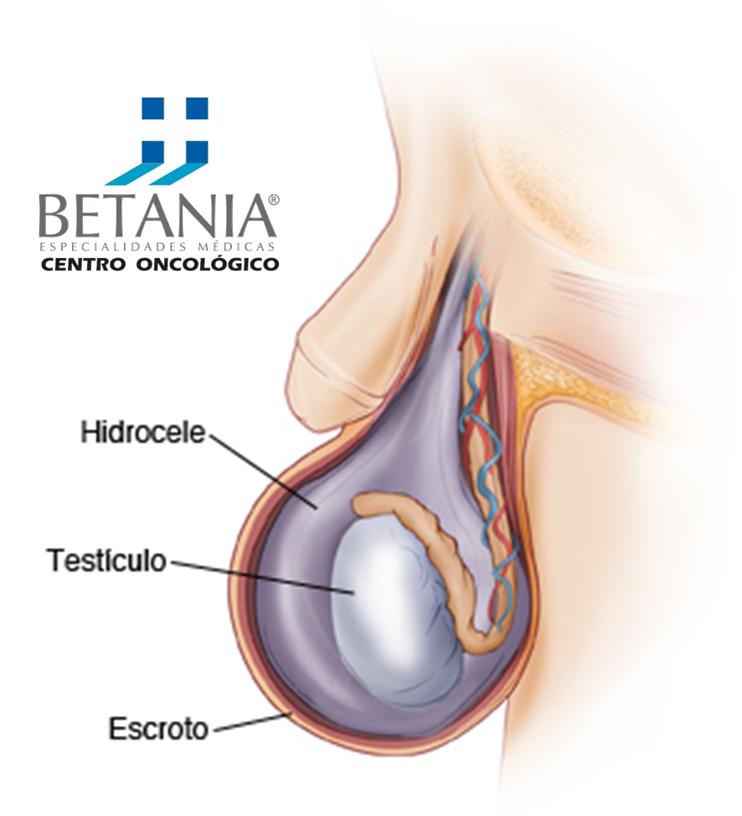 Hidrocele | Urología | Pinterest