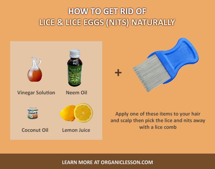 bad0a4f2cd8c3890c8ac5b28245d9edd - How To Get Rid Of Lice With White Vinegar