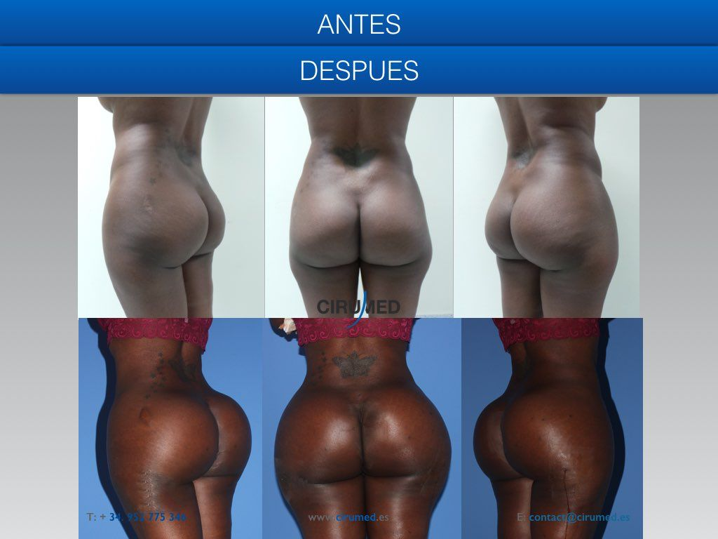 Famous Brazilian Butt Model Is Now Rotting