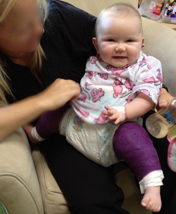 Spica Cast Advice Tips For Parents Of Children With Hip Dysplasia