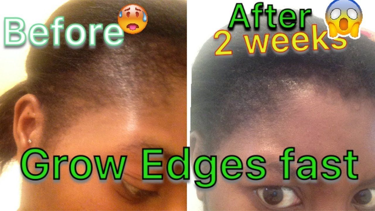 GROW YOUR EDGES FAST IN JUST 2 WEEKS YouTube Grow