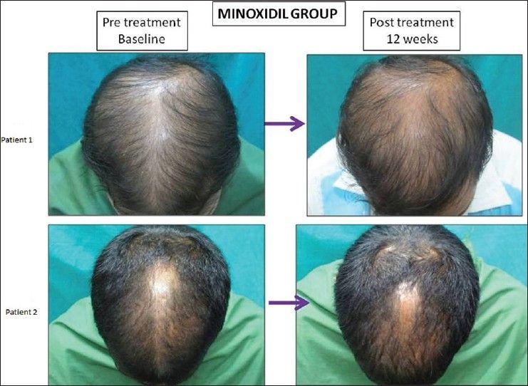 how often to microneedle scalp
