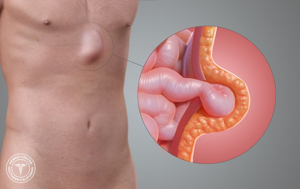 Suffering from Epigastric Hernia? Seeking for epigastric hernia ...