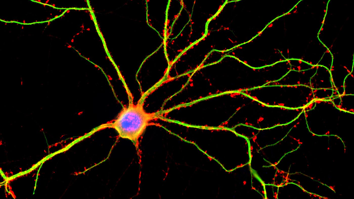 Realm Of Memories Bird Brained: Sorry, Adults, No New Neurons For Your Aging Brains