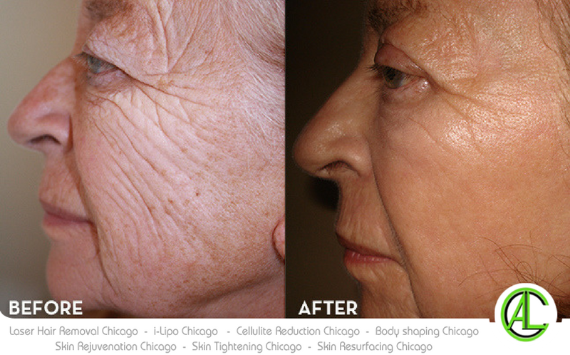Pin By Naveen Ceo On Wrinkle Reduction Skin Cream Skin