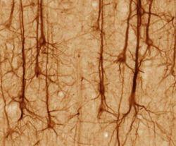 Human Dendrites - the neural web and human consciousness