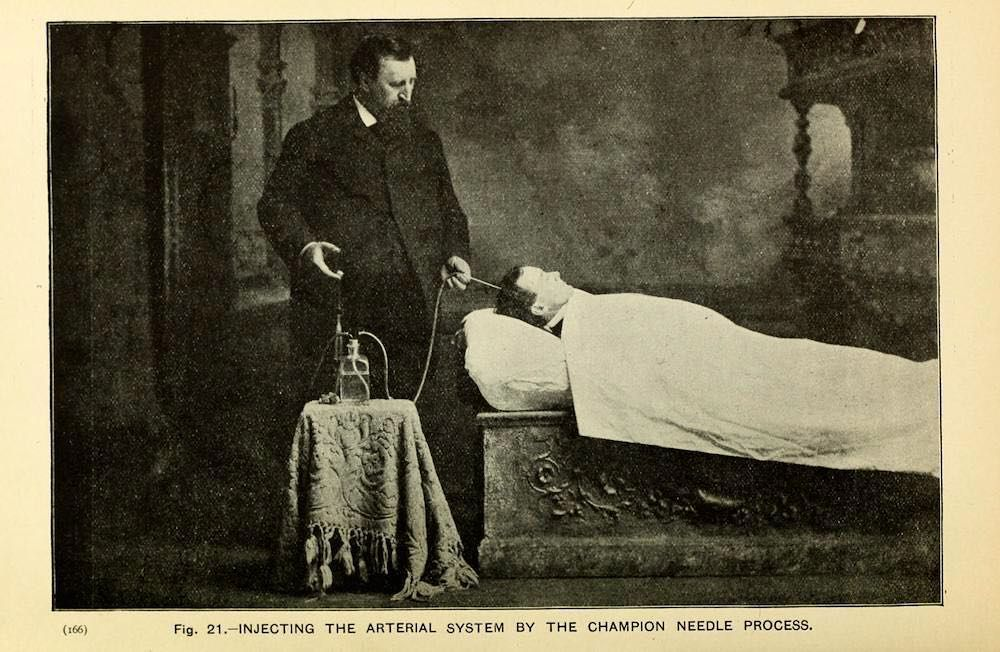 """From a series of images demonstrating the process of embalming from """"The Champion Text Book on Embalming"""" published in 1897 and written by Eliab Myers M.D. and F. A. Sullivan. The Champion Company was founded in 1878 in Springfield Ohio and is still in the same business today. by fabiola.alondra"""