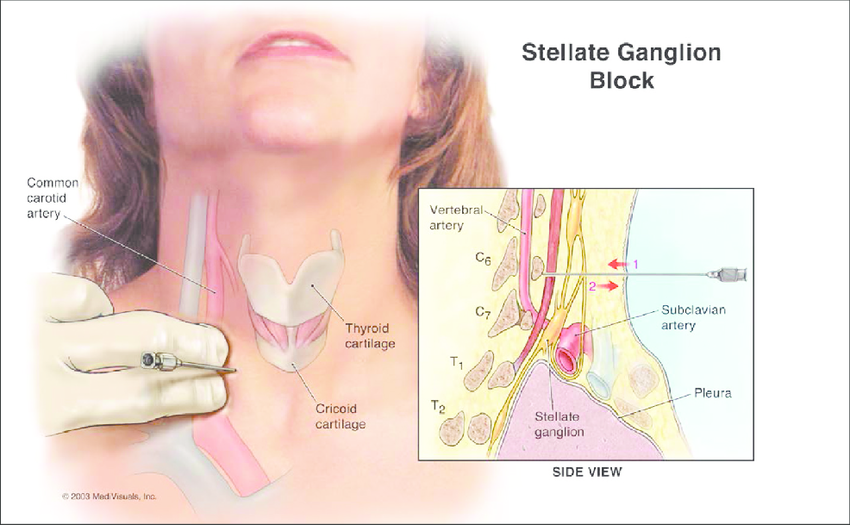 Stellate Ganglion Is A Collection Of Nerves Sympathetic That