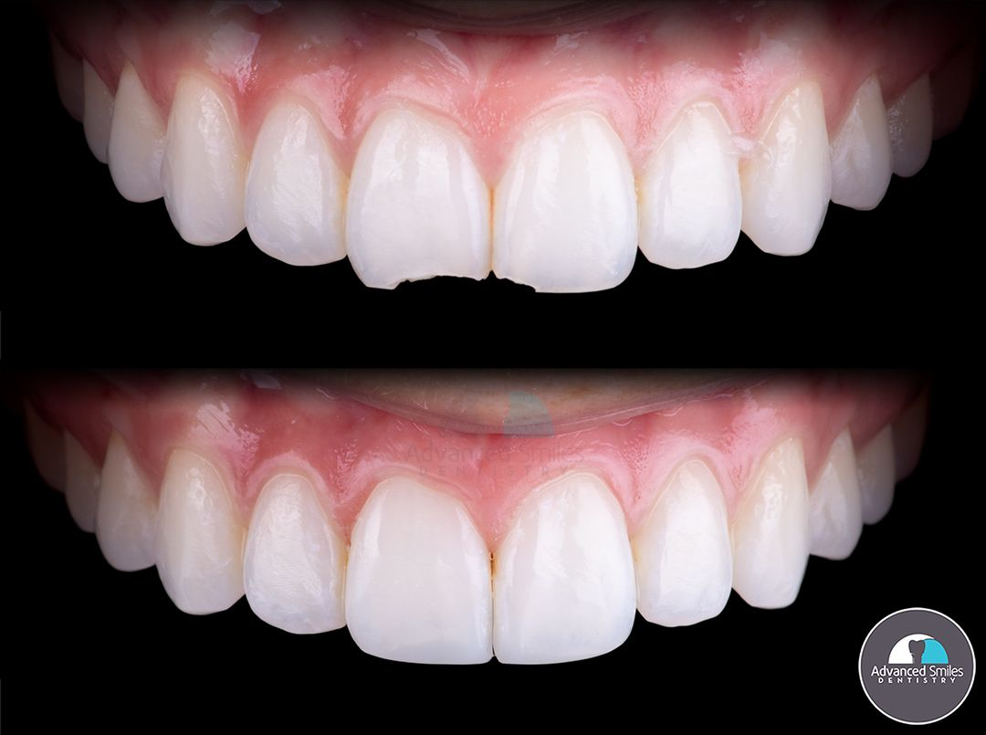 Do you have a chipped tooth that you havent gotten fixed