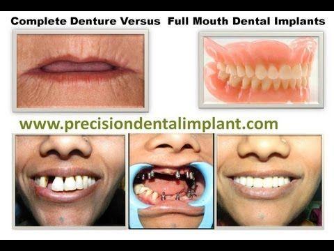 Dentures Near Me >> Complete Denture Versus Full Mouth Dental Implants Www