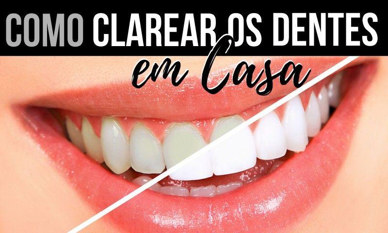 6 Receitas Para Clarear Os Dentes Em Casa Dentes Dentes Clarear