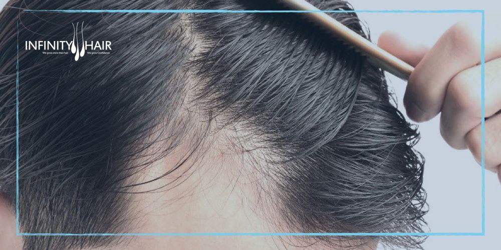مميزات تقنية السفير في زراعة الشعر تقنية Sapphire انفينتي هير لزراعة الشعر