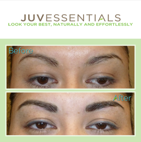 Although any type of permanent makeup or tattoo removal