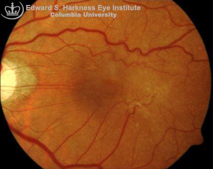 Epiretinal Membrane Macular Pucker Surface Wrinkling Retinopathy