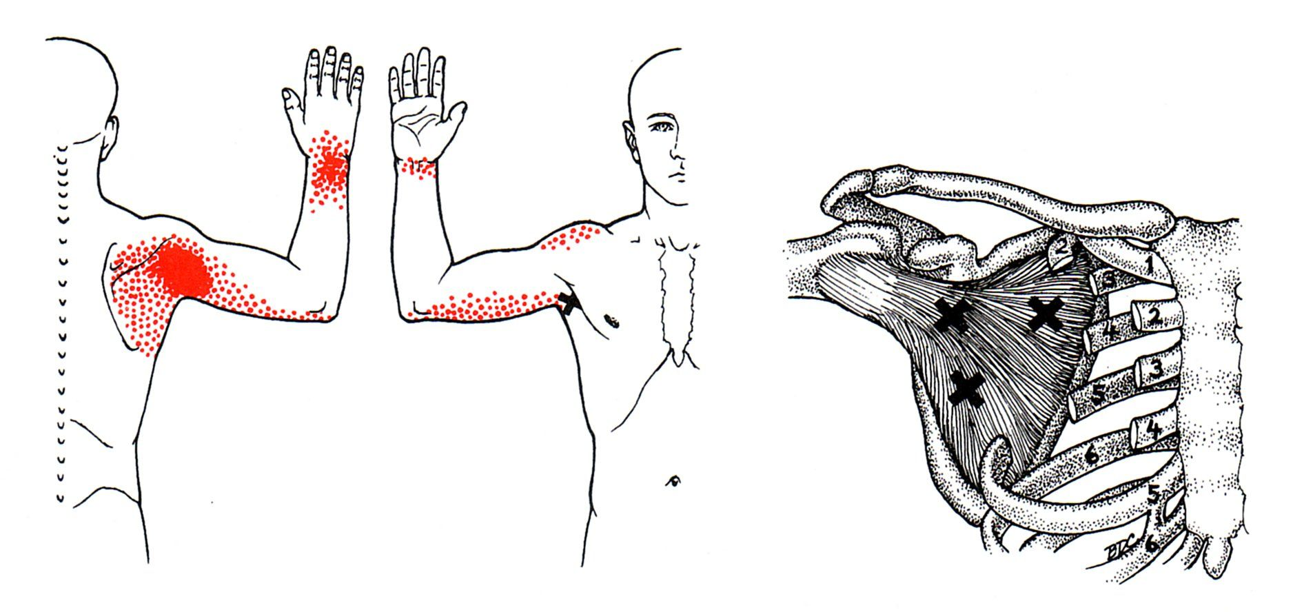 Unterschulterblattmuskel | The Trigger Point & Referred Pain Guide ...