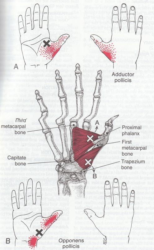 trigger point thumb http://robin-thomson.wix.com/massage-by-robin ...