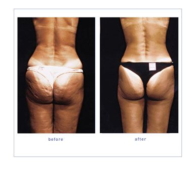 Pin On Cellulite Remedies