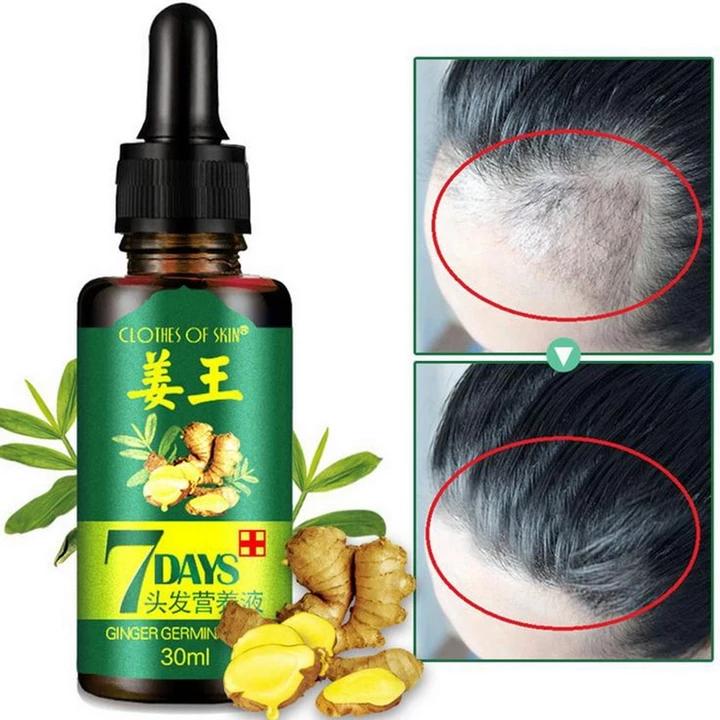30ml Hair Growth Serum Essence for Women and Men AntiHair