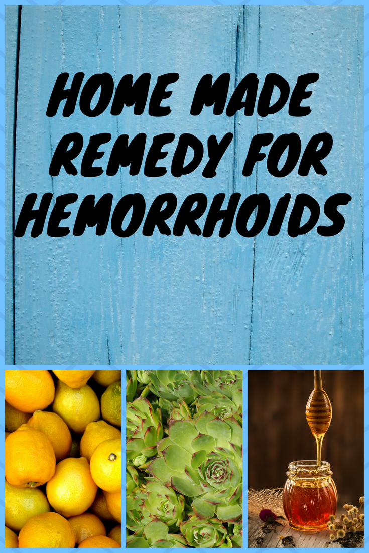 HOME MADE REMEDY FOR HEMORRHOIDS Hemorrhoids
