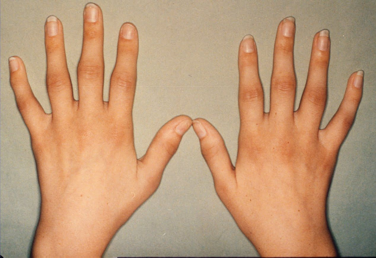 rheumatoid arthritis dating site