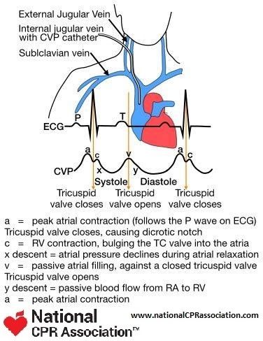 Central Venous Pressure Monitoring Cvp Medicalstudent Cardiology