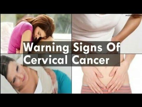 10 Warning Signs of Cervical Cancer You Should Not Ignore _ Natural Health  Forev_HD - WATCH THE VIDEO *** signs of cervical cancer *** 10 Warni… |  Pinteres…