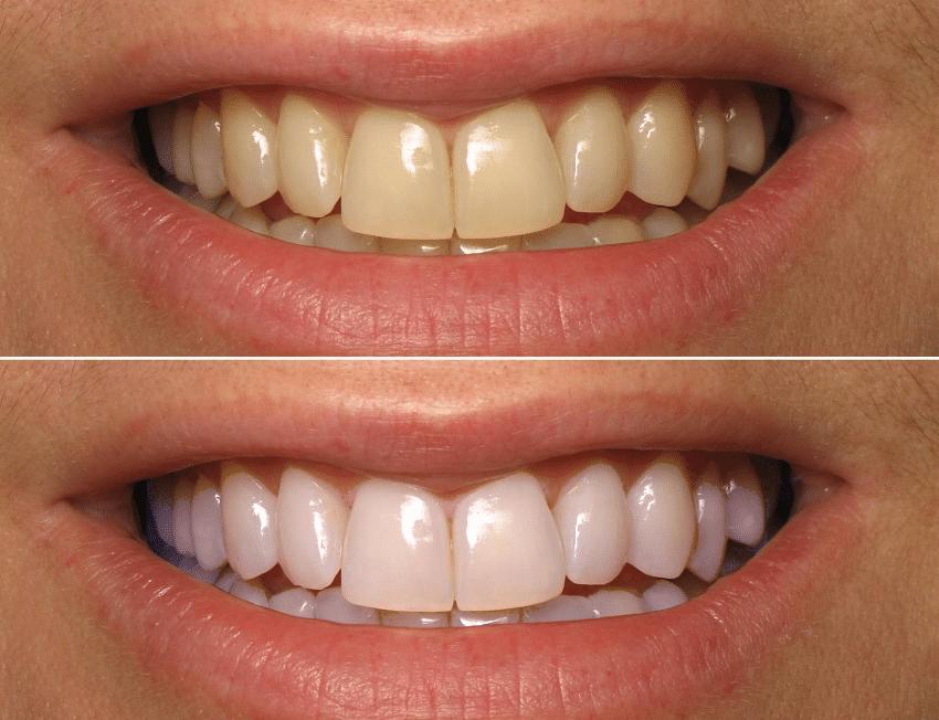 Resultado De Imagem Para Clareamento Dental Antes E Depois Site
