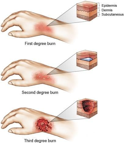 Om How To Help A Burn Victim Home Remedies For Burns Degree Burns Burns Treatment